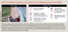 What is the difference between a local reaction and an allergic reaction to a bee sting?